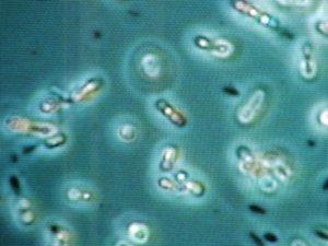 Как лечить анаэробные бактерии